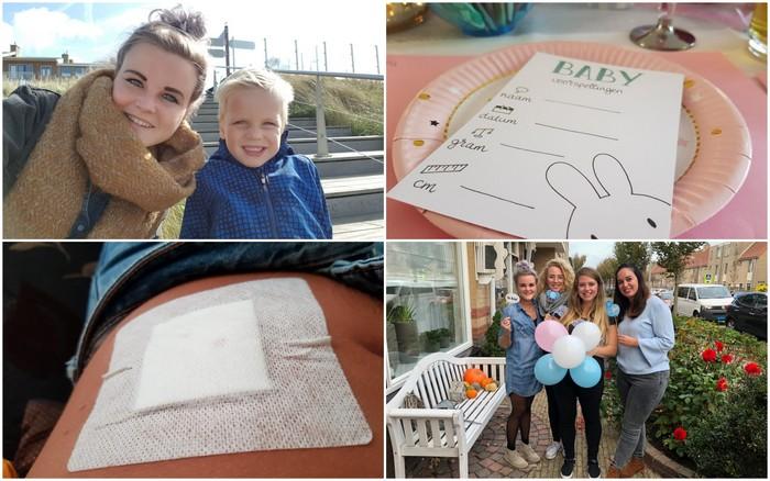 Photo Diary #170 | Babyshower, moedervlek weghalen & angst overwonnen